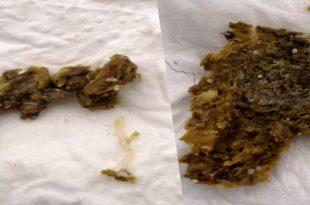 دانه سفید در مدفوع مرغ